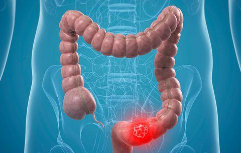 Vitamina D ndihmon në luftimin e kancerit të zorrëve
