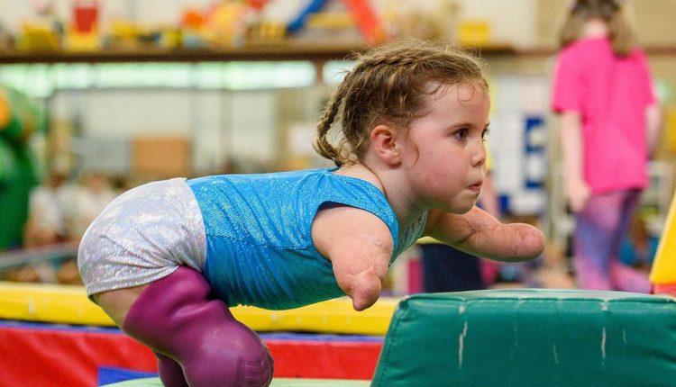 Humbi 4 gjymtyrët nga meningjiti, 5-vjeçarja bëhet ylli i gjimnastikës