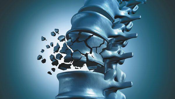 Barnat kundër osteoporozës e zvogëlojnë rrezikun nga vdekja e hershme për 34%
