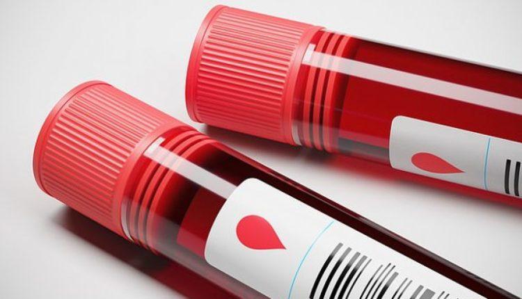 Shkencëtarët e kanë krijuar testin e gjakut që ju tregon a do të vdisni brenda 10 viteve