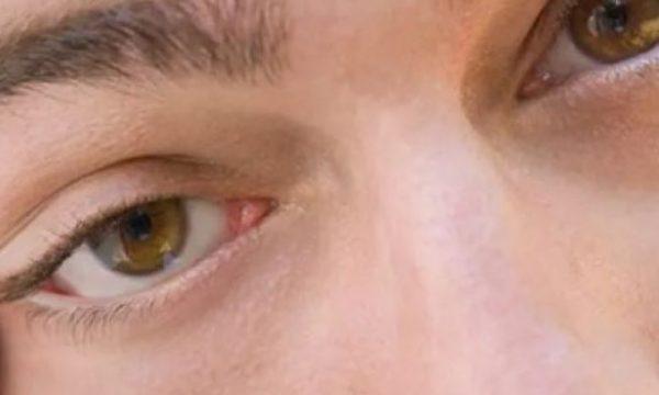 A ju është dridhur syri dhe nuk e keni kuptuar kurrë përse? Merreni vesh tani dhe mahnituni me arsyen