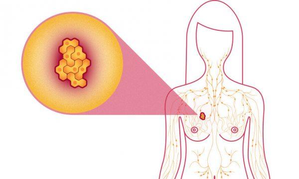 Katër mitet e gabuara që pacientët i besojnë për kancerin e gjirit