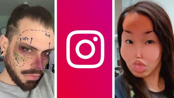 Instagram heq filtrat që promovojnë kirurgjinë kozmetike, dëmtojnë shëndetin mendor