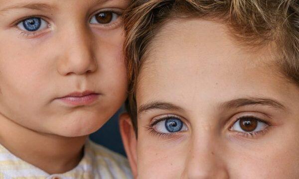 Misteri i vëllezërve nga Turqia, njëri ka një sy blu, tjetri syrin tjetër