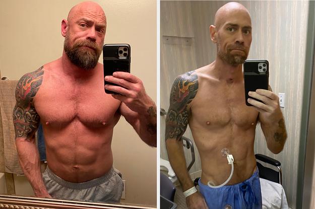 Humbja e peshës, i mbijetuari nga koronavirusi publikon fotografi shokuese