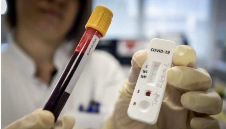 Kovid-19, numri i të shëruarve shumë më i lartë se i të infektuarve