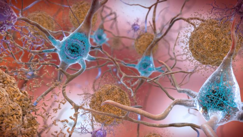 Dita botërore e sëmundjes Alzheimer: Në Maqedoni jetojnë rreth 40 mijë persona me këtë sëmundje