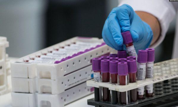 E thjeshtësuar për t'a kuptuar të gjithë, çfarë është testi PCR , e çfarë është testi SEROLOGJIK…?