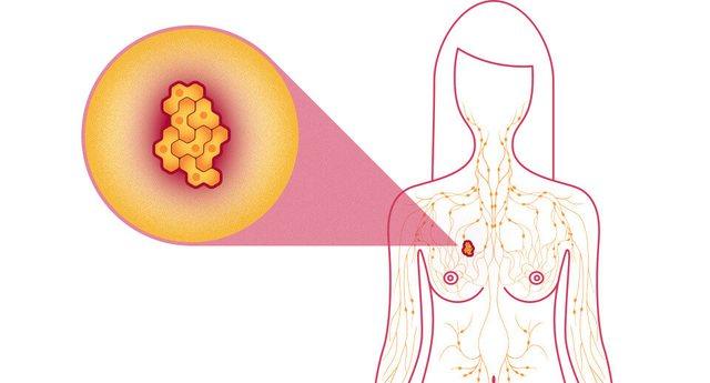 4 shenjat e pabesueshme të kancerit të gjirit që s'kanë lidhje fare me dhimbjet apo zonën e kraharorit