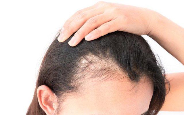Si të kuptoni nëse rënia e flokëve në këtë periudhë është normale apo e tepërt; 3 mënyra që mund t'i provoni menjëherë