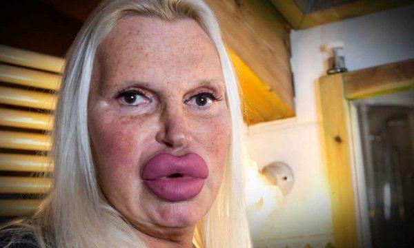 """Ka shpenzuar mbi 45 mijë euro në operacione, thotë se tani ka """"fytyrën perfekte"""" (FOTO)"""