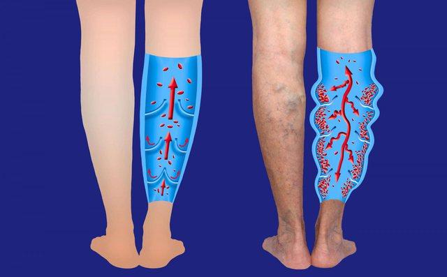 Si të kujdeseni për variçet dhe këmbët tuaja të duken më të bukura në 4 mënyra